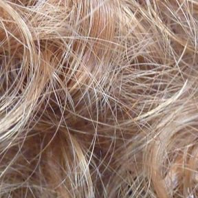 Hair Transplant Phoenix cover