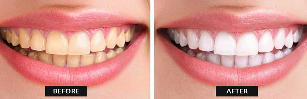 Punyam Dental Clinic cover