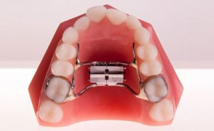 Soleil Orthodontics cover