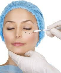 Blepharoplasty Surgery Dubai cover