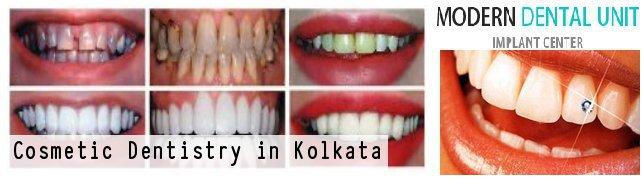 Kolkata, West Bengal, India cover