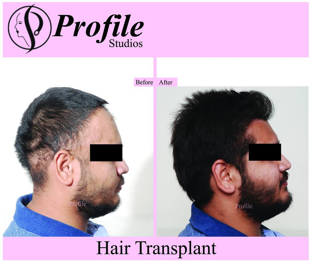 Profile Cosmetic Surgery Centre cover