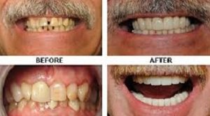 Cosmetic Dentist Scottsdale Experts cover