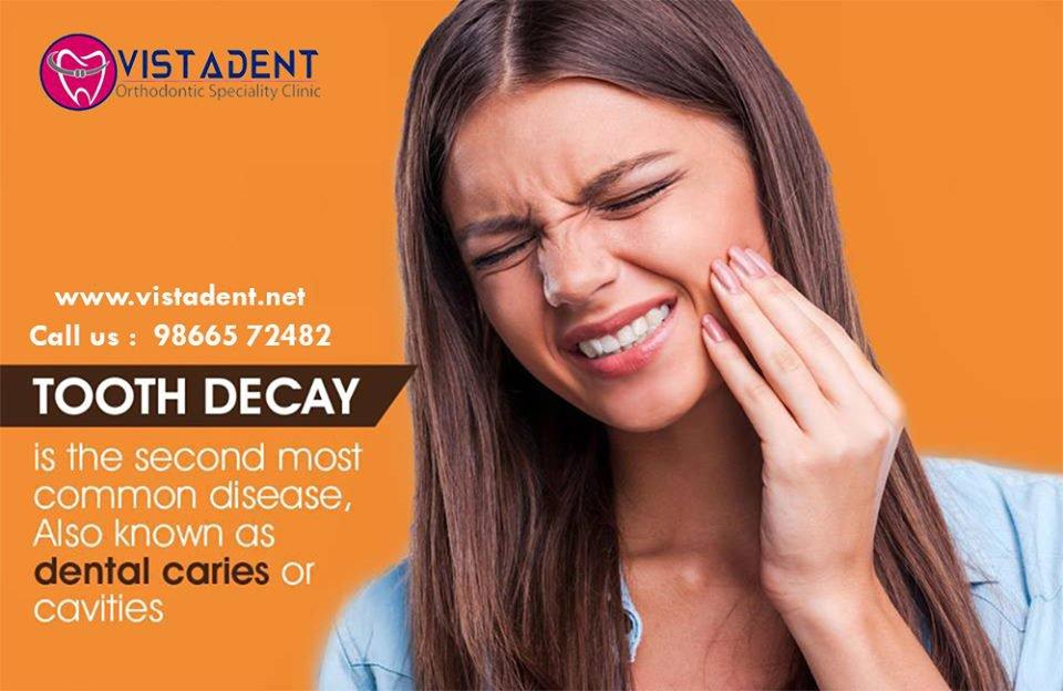 Vistadent Orthodontist in Banjara hills|Braces specialist|Dental Clinic Best Dentist in Hyderabad cover