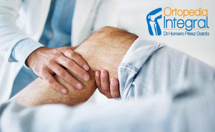 Ortopedistas en CDMX - Dr. Homero Pérez García cover