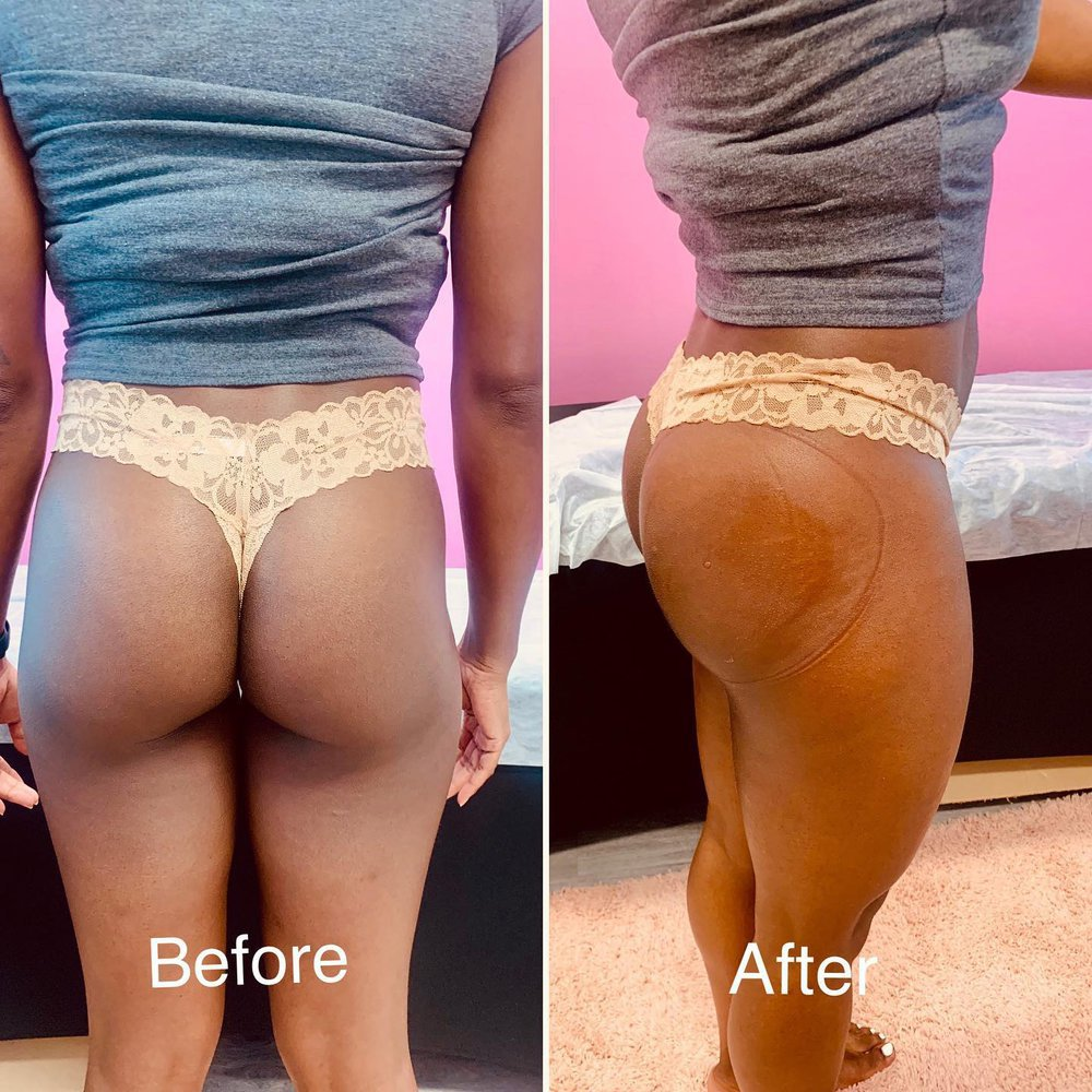 Snatched Body Contouring cover