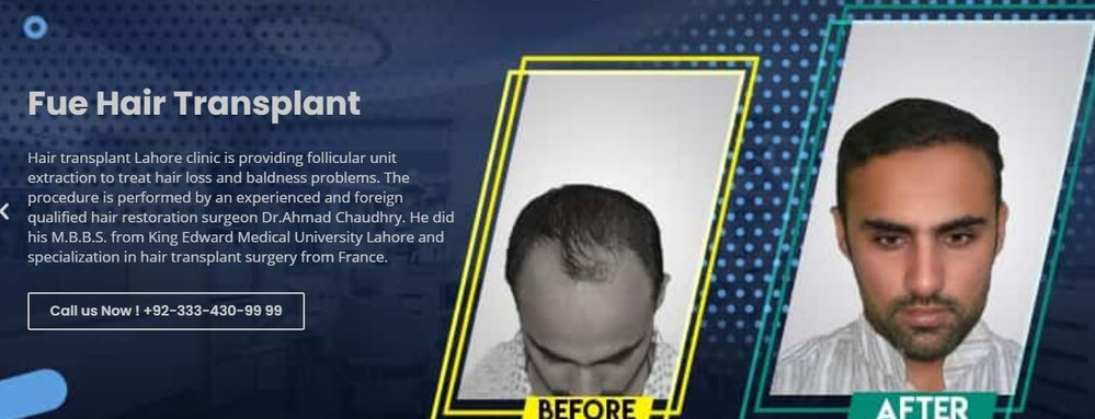 Hair Transplant Lahore cover