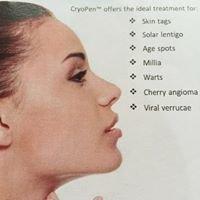 Cryopen Treatments Yorkshire