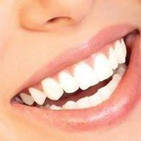 SnowWhite TeethWhitening