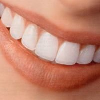 Top Beverly Hills Cosmetic Dentist