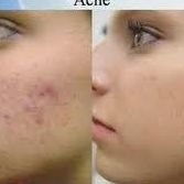 Ultra Medic Skin Acne Treatment