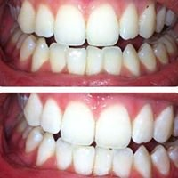Beaming White Mobile Teethwhitening