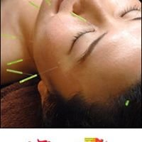 Agopuntura e Laserterapia
