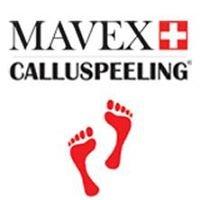 Calluspeeling MAVEX