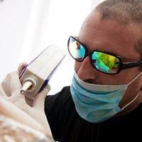 laser tattoo removal-Pleven