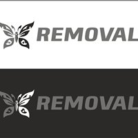 Removal-Tattoo