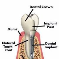 Midwest Periodontics and Implantology, PC.