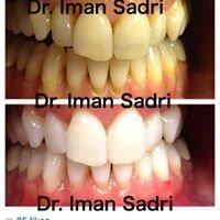 Concierge Teeth Whitening
