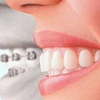 Clear Orthodontics Caroline Springs