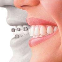 Clear Orthodontics Broadmeadows