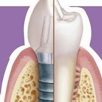 Dental Implant Surgery Center
