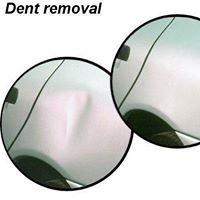 Dent-Trix Paintless Dent Repair Company