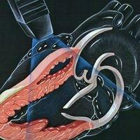 Cabinet de cardiologie, ecocardiografie si testarea capacitatii de efort