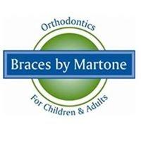 Braces by Martone
