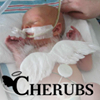CHERUBS - Congenital Diaphragmatic Hernia Research, Awareness and Support