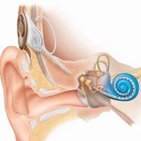 University of South Carolina Cochlear Implant Program