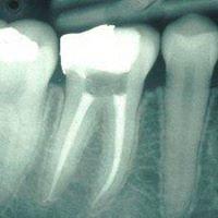 Endodontic Associates Dental Group