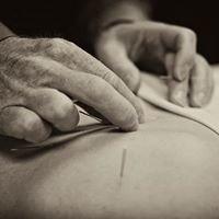 Denver Acupuncture Healthy Lives Acupuncture