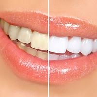 Shore Smiles Teeth Whitening