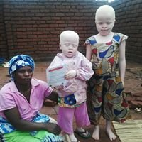 Association of People with albinism in Malawi - APAM