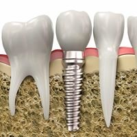 Warner Dental CARE, LLC