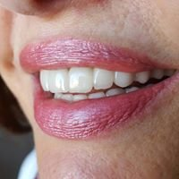 Agrinio clinic of Periodontology Dental Implants and Esthetic Dentistry