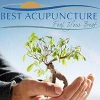 Best Acupuncture