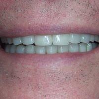 Marietta Dental Care