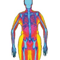 Body DEXA Fit