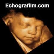 Echografilm