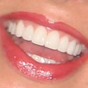 The Harley Street Smile Clinic
