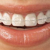 Become a fan of PM Orthodontics