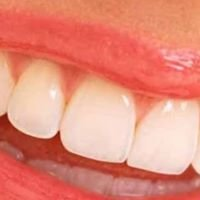 Orland Elite Dental