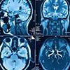 Pracownia diagnostyczna Resonica - rezonans magnetyczny