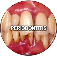 Periodoncia y Periodontología