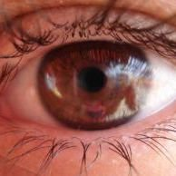 Little Rock Eye Clinic