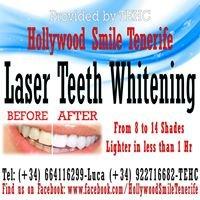 Teeth Whitening Hollywood Smile Tenerife