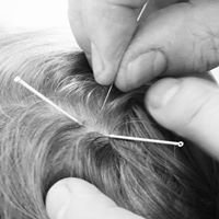 Nicola Court - Traditional Chinese Acupuncture and massage