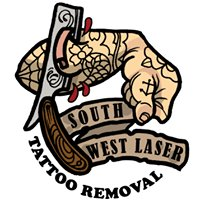 South West Laser, Tattoo Removal