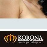 Bytom Medycyna Estetyczna Korona i Profesjonalna Kosmetologia